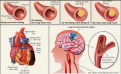 Học cách chung sống với bệnh mỡ máu, mỡ gan, tim mạch