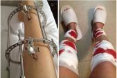 Phẫu thuật kéo dài chân - kéo được bao nhiêu và mất bao nhiêu tiền?