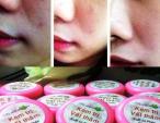 Hỏng da vì kem trị vết thâm bán trên facebook