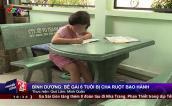 Bình Dương: Bé gái 6 tuổi bị bố ruột dùng lửa đốt khắp người