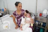 Xót lòng nhìn bé 7 tháng tuổi khóc thét đau đớn vì bị bỏng nặng