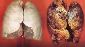 Điểm mặt loại ung thư nguy hiểm do hút thuốc lá