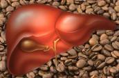 Gan khỏe nhờ uống cà phê