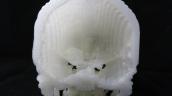 Công nghệ in 3D giúp phẫu thuật u não thành công