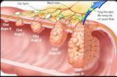 Nhận biết dấu hiệu ung thư dạ dày và phương pháp chữa trị