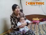 Em bé không hậu môn phẫu thuật 4 lần trong 8 tháng