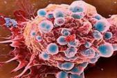 Top loại nước trái cây chống ung thư hiệu quả