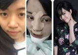 Gặp cô gái phẫu thuật toàn mặt vì sợ chồng chán