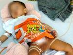 Tái tạo bàng quang cho bé bị bác sĩ cắt nhầm