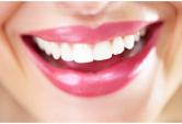 3 bí quyết tẩy răng trắng tinh tại nhà