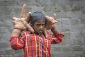 Cuộc sống địa ngục của cậu bé có bàn tay khổng lồ