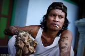 Người cây Indonesia đã qua đời
