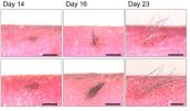 Nghiên cứu thành công lớp da nhân tạo có thể đổ mồ hôi và mọc tóc