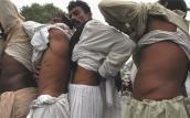 Thị trường đen mua bán thận ở Ấn Độ