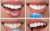 Chỉ tốn vài nghìn đồng bạn có thể lấy sạch cao răng ngay tại nhà
