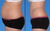 Cách giảm mỡ bụng cấp tốc tại nhà trong vòng 1 tuần