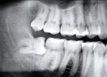 Chuyên gia tiết lộ sự thật kinh hoàng: Tử vong vì chiếc răng khôn, chớ coi thường