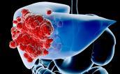 Ung thư gan ngày càng tăng cao: 6 dấu hiệu nhận biết sớm