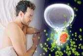 Khó ngủ làm tăng nguy cơ mắc ung thư tuyến tiền liệt