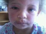 Bé gái 9 tuổi bị trầm cảm do phải vận lộn với bệnh chàm nguy hiểm