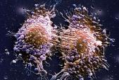 Phương pháp điều trị mới có thể khiến bệnh ung thư