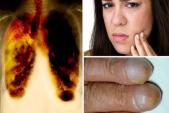 Ung thư phổi - Những triệu chứng có thể phát hiện qua móng tay