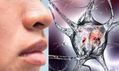 Đột nhiên bị mất mùi, cảnh báo bệnh Parkinson nguy hiểm