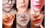 """Kinh ngạc trào lưu """"môi sừng trâu"""" của giới trẻ Thái Lan"""