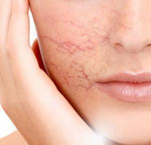 Bí quyết xóa bay tình trạng nổi gân máu vùng da mặt